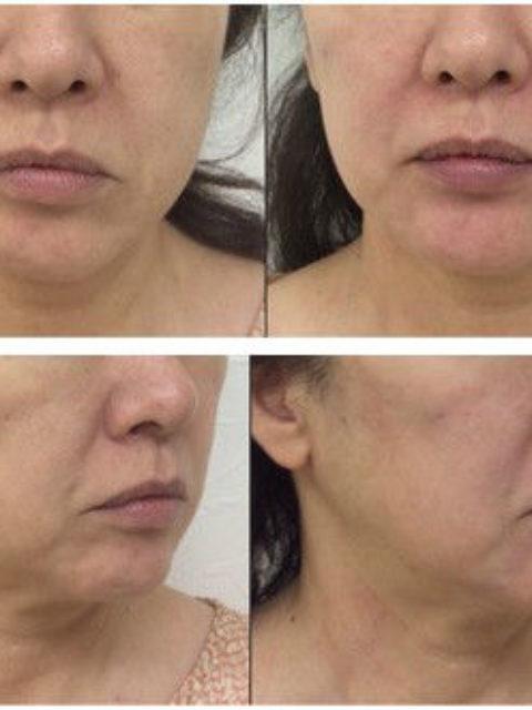 ヒアルロン酸注入治療(顔面下3分の1を中心に治療を行なった症例)