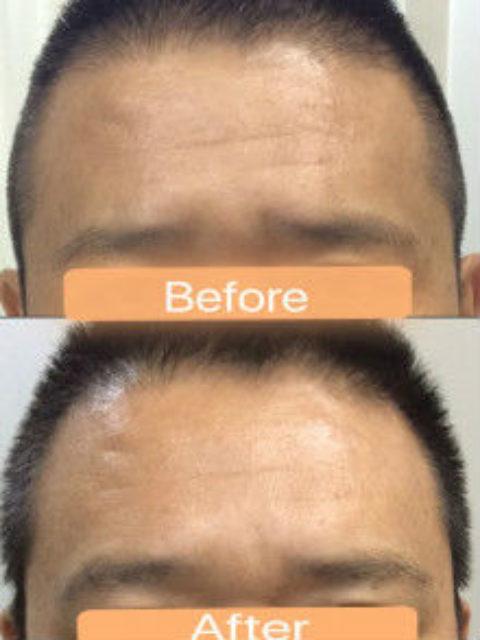 男性の眉間のたてジワボトックス・イメージコントロールに