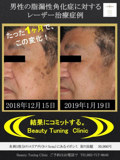 男性のしみ・イボ(脂漏性角化症)に対するレーザー治療