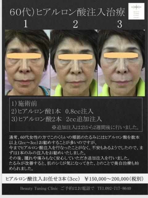 60代女性へのヒアルロン酸注入治療症例