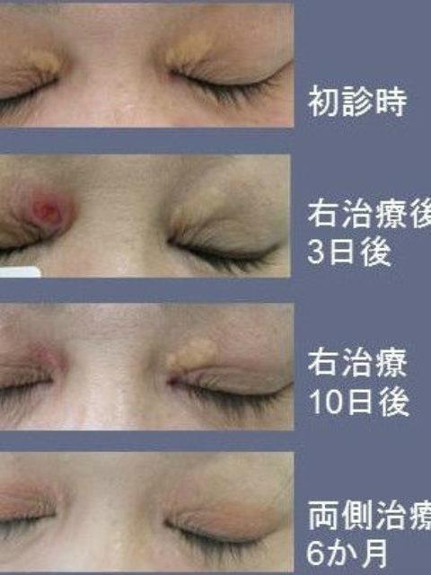 眼瞼黄色腫の炭酸ガスレーザー治療