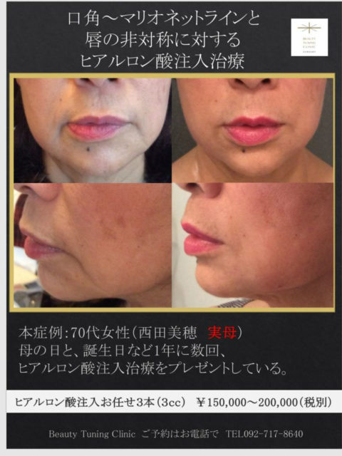 70代女性へのヒアルロン酸注入治療(口角、マリオネット、唇)
