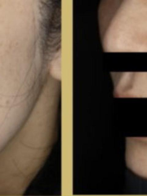 シミの光治療症例 2回施術