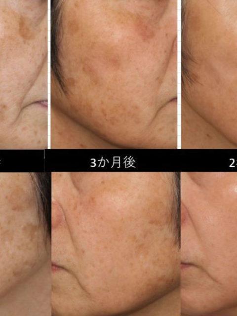肌は甦る!美肌治療 症例写真