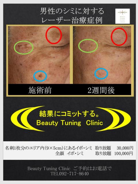 男性のシミ治療 レーザー治療の症例