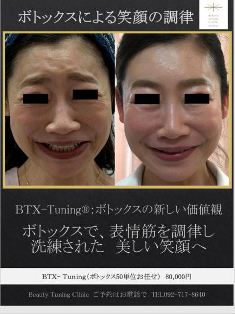 ボトックス注射による笑顔の調律(BTX-Tuning®︎)症例:ボトックス料金表