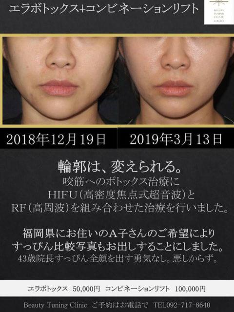 エラボトックス治療の症例写真についてA子さんからのリクエスト