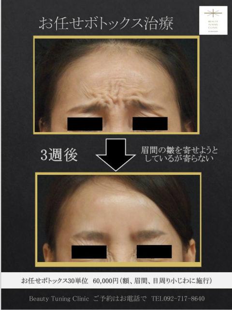 個性的な眉間の皺にもボトックス。お任せボトックス30単位症例。(ボトックス愛しつこい記述)