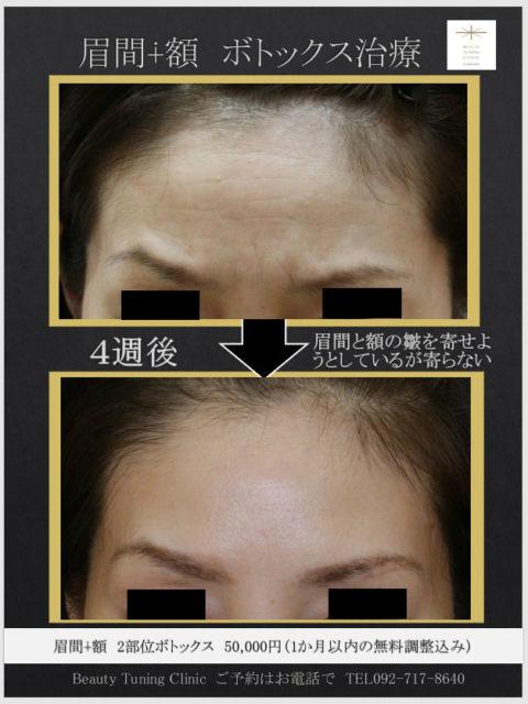 眉間のシワ、額のシワへのボトックス症例