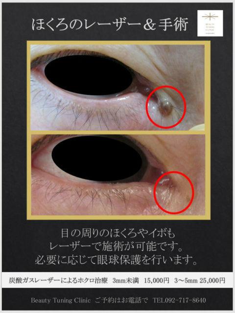 炭酸ガスレーザーによる 目の周りの ホクロとり