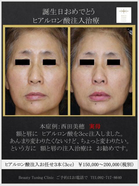 額と唇のヒアルロン酸注入(実母)