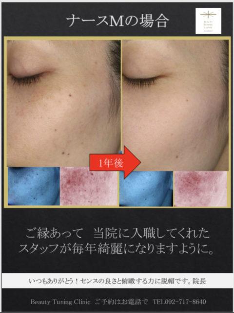 ナースMの肌の経過