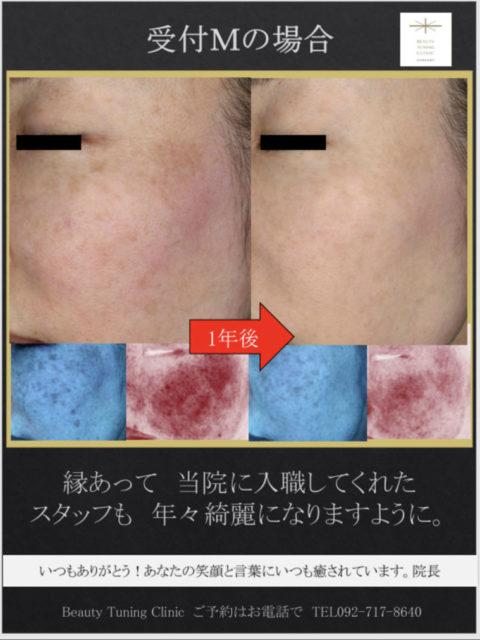 受付Mの肌の経過