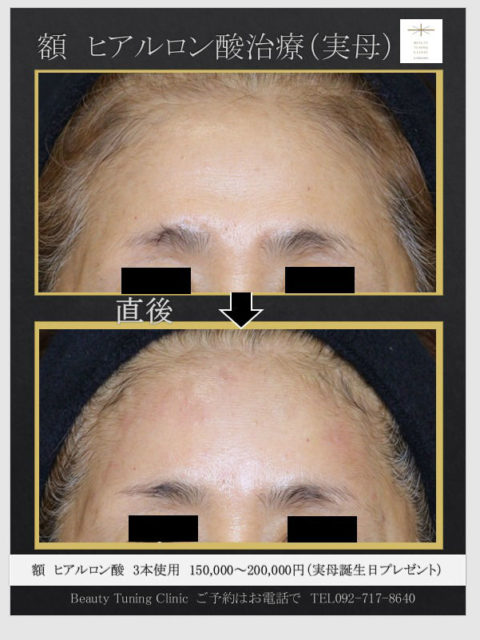 額へのヒアルロン酸注入症例(実母72歳)←誕生日プレゼント