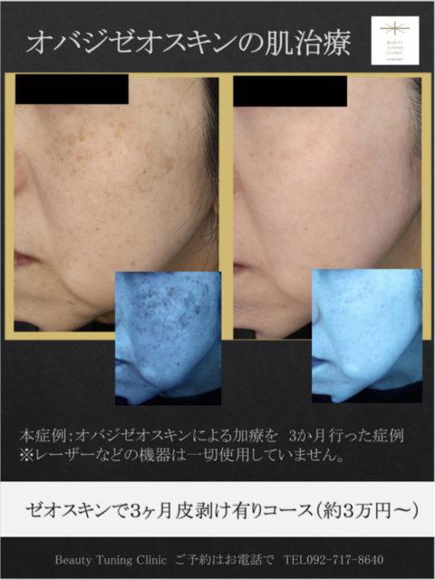 オバジゼオスキン(外用療法のみ・レーザー使用なし)の肌治療症例