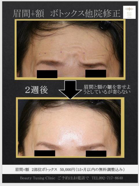他院のボトックス治療後修正(額・眉間)症例