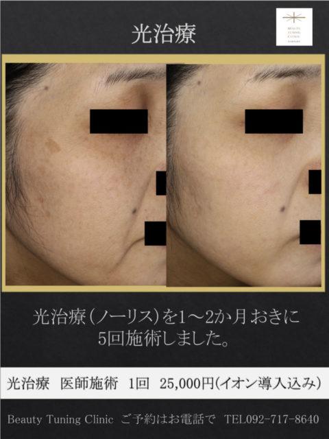 光治療7回施術症例