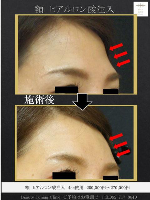 額の形を整えるヒアルロン酸注入