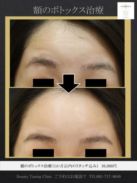 額のシワのボトックス:「表情クセ」コントロールと「シワ予防」に若いうちからボトックス
