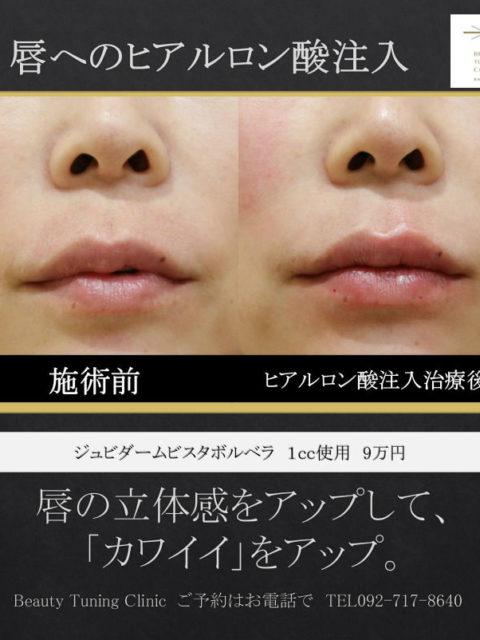 唇へのヒアルロン酸注入症例