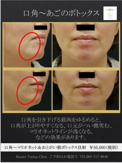 口角〜あごのボトックス:口角ボトックスの効果の実際について
