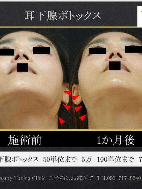 耳下腺へのボトックス治療症例2