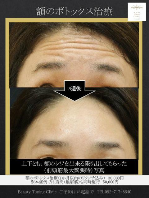 眉間と額のボトックス治療