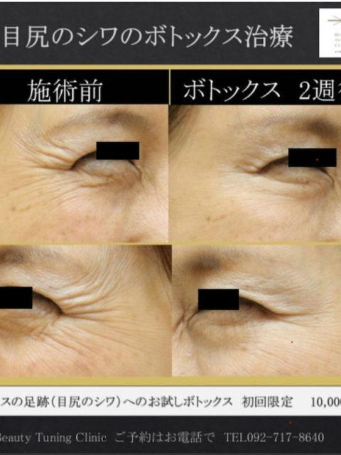 目尻のシワのボトックス治療