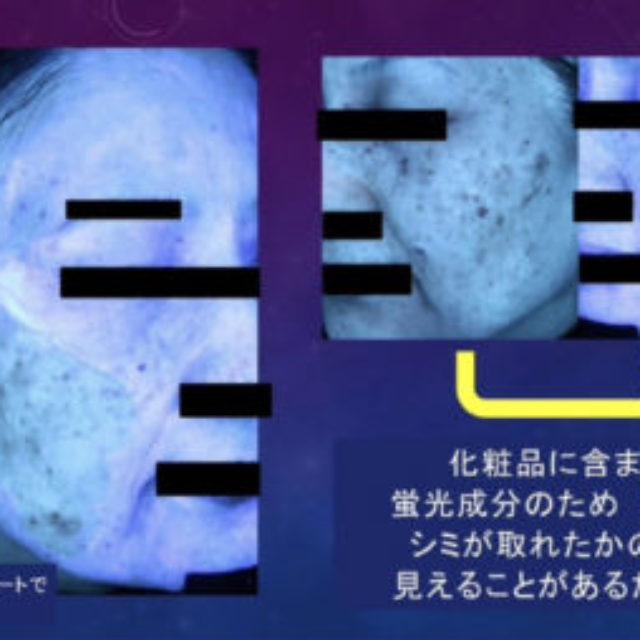 肌画像解析機の診断について注意喚起