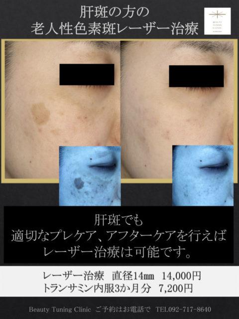 肝斑+老人性色素斑の治療