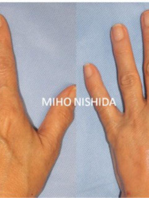 「手」は年齢を語る:手の若返り治療について ②注入治療