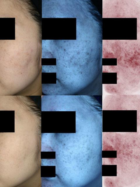 スキンケアの見直し&光治療(ゼオスキン には向かない敏感肌&オイリー肌)
