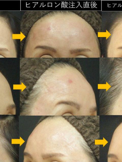 つるっとした額に:ヒアルロン酸注入+ボトックスを併用した症例