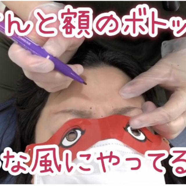 動画)眉間と額のボトックスはこんな感じで施術します🎶