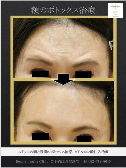 額を「つやっと」:ヒアルロン酸∔ボトックス(眉間、額)の症例