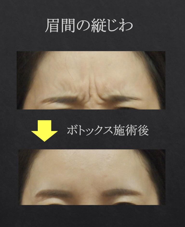 眉間の縦ジワ