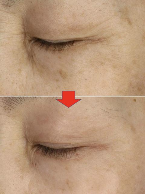 ゼオスキン症例:ハイドラファームで目周り改善
