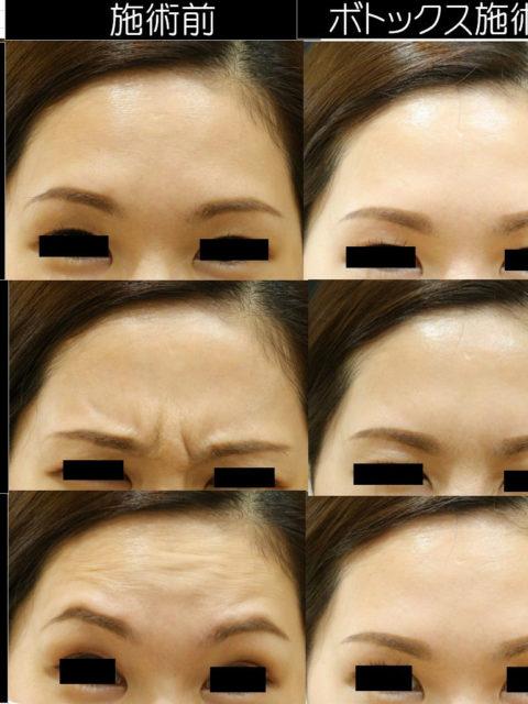 眉間と額のボトックス治療(30代女性)