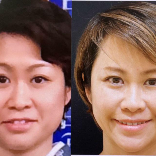 西田美穂の「顔の歴史」と「美容医療の履歴」