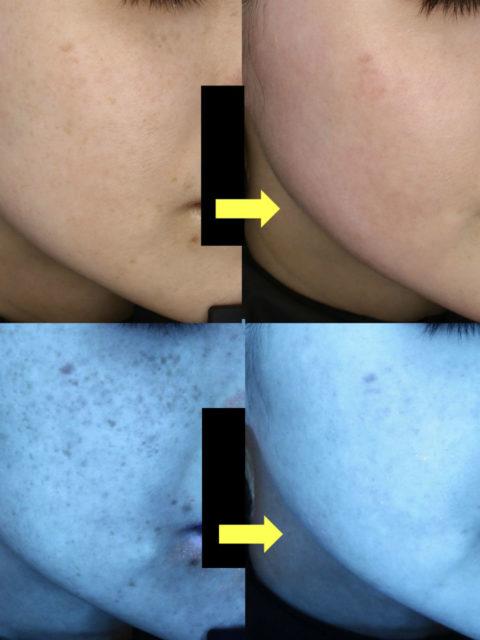 ゼオスキン皮剥けあり(セラピューティック)症例 ゼオスキンで効果を出しやすい肌、出しにくい肌