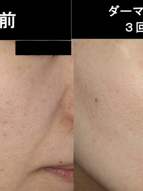 30代女性 毛穴、ニキビあとにダーマペン+TCA 症例2