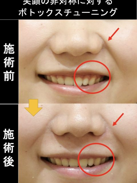 笑顔の非対称に対するBTX-Tuning®︎(ボトックスチューニング)