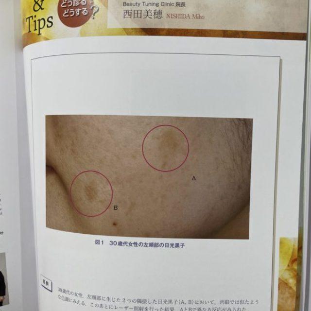 医師向け雑誌「Bella pelle」にシミ(日光黒子)についての記事が掲載されました